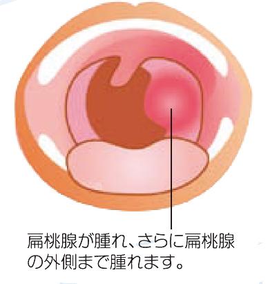 扁桃周囲炎・扁桃周囲膿瘍