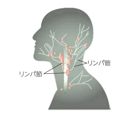 頚部リンパ節